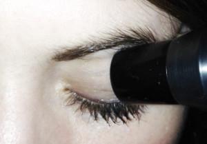 ecografia oculare non invasiva