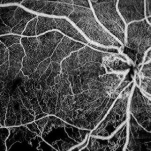 angiografia OCT