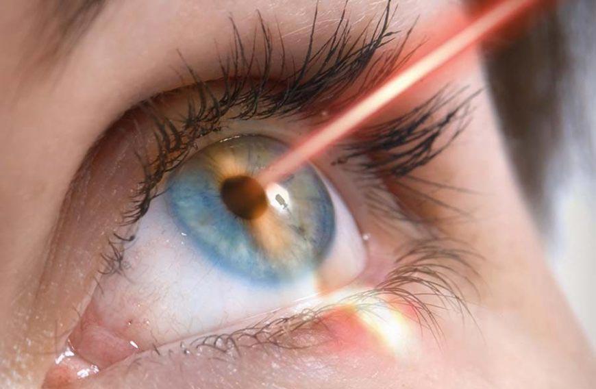 fotocoagulazione-laser
